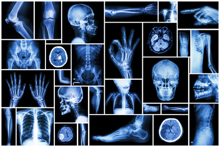 Collection X-ray multiple part of human photo