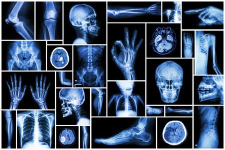 Kolekcja rentgenowskie wielu częścią człowieka