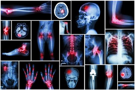 コレクション x 線複数の疾患 (関節炎、脳卒中、脳腫瘍、痛風、関節リウマチ、腎臓結石、肺結核、膝の変形性関節症など) 写真素材