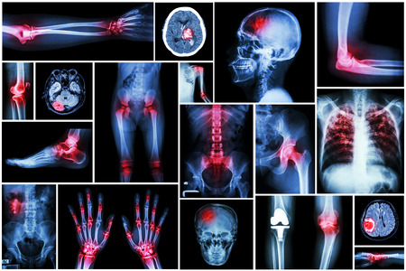 Collection x-ray multiple disease (arthritis,stroke,brain tumor,gout,rheumatoid,kidney stone,pulmonary tuberculosis,osteoarthritis knee, etc) Stock Photo