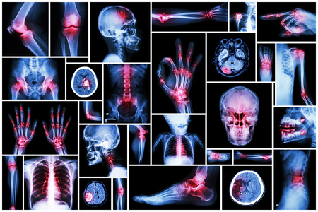 X-ray multiple part of human with multiple disease (stroke, arthritis, gout, rheumatoid, brain tumor, osteoarthritis, etc)