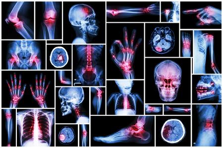 corpo umano: X-ray parte multiplo umano con la malattia multiple (ictus, artrite, gotta, artrite reumatoide, tumore al cervello, artrosi, ecc)
