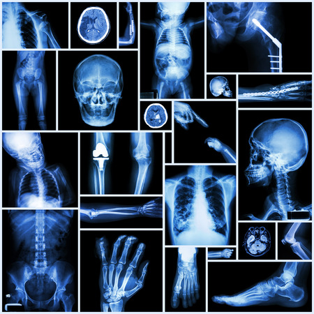 Collection X-ray Multiple part of human ,Orthopedic surgery and Multiple disease (Fracture,Shoulder dislocation,Osteoarthritis knee,Bronchiectasis,Lung disease,Stroke,Brain tumor, etc) photo