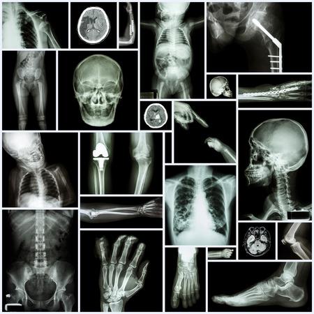 luxacion: De rayos X Collection parte m�ltiple del ser humano, la cirug�a ortop�dica y la enfermedad M�ltiple (Fractura luxaci�n de hombro, rodilla La osteoartritis, bronquiectasia, enfermedad pulmonar, derrame cerebral, tumor cerebral, etc)