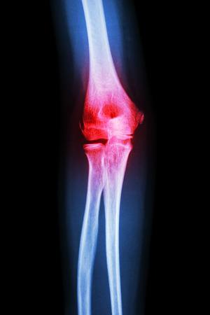 rheumatoid: X-ray human s elbow and arthritis (Gout , Rheumatoid) Stock Photo