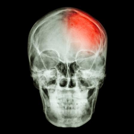cva: Film X-ray skull and headache. (Stroke,Cerebrovascular accident) Stock Photo