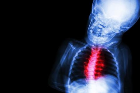 human heart anatomy: X-ray child s body with Congenital heart disease