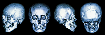 CT scan of human skull and 3D photo