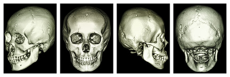 cva: CT scan of human skull and 3D