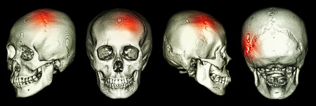 ct scan: CT scan of human skull and 3D with Stroke (cerebrovascular accident) Stock Photo