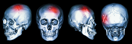 CT scan of human skull and 3D with Stroke (cerebrovascular accident) photo