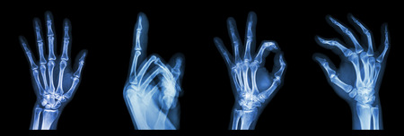 emergency number: Collection X-ray symbol hands Stock Photo