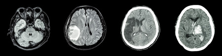 animals x ray: Collection CT scan of brain and multiple disease (Left to Right  :  Normal brain,Brain tumor,Cerebral infarction,Intracerebral hemorrhage) Stock Photo