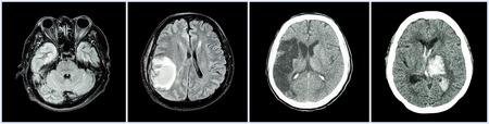 hemorragia: TC Recogida del cerebro y las enfermedades m�ltiple (De izquierda a derecha: el cerebro normal, tumor cerebral, infarto cerebral, hemorragia intracerebral)