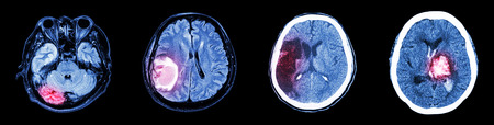 Collection CT scan of brain and multiple disease (Left to Right  :  Normal brain,Brain tumor,Cerebral infarction,Intracerebral hemorrhage) Stock Photo