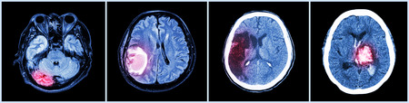 neurological: Collection CT scan of brain and multiple disease (Left to Right  :  Normal brain,Brain tumor,Cerebral infarction,Intracerebral hemorrhage) Stock Photo