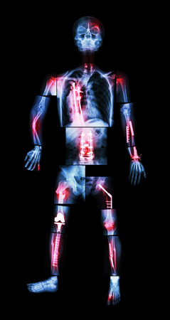 the whole body: X-ray whole body and multiple fracture. He was operated and internal fixation by plate & screw