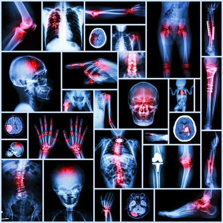 broken arm: Collection of X-ray multiple part of human,Orthopedic operation and multiple disease (Stroke,Fracture,Gout,Rheumatoid arthritis,Scoliosis,Osteoarthritis knee,Tuberculosis, etc )