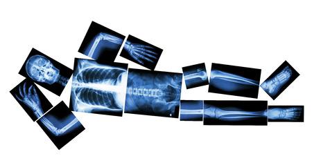 X-ray whole human s body (sleeping) photo