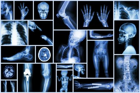 huesos humanos: De rayos X Collection parte múltiplo de la cirugía humana & Ortopédicos y la enfermedad Múltiple (rodilla artrosis, espondilosis, Stroke, hueso Fractura, tuberculosis pulmonar, etc.)