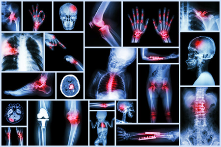 Collection X-ray multiple human s organ & orthopedic surgery & Multiple disease (Pulmonary tuberculosis , Gout , Rheumatoid arthritis ,Spondylosis , Fracture bone , Stroke , Brain tumor , etc) photo