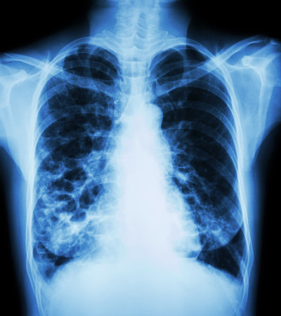 bleb: Bronchiectasis  X-ray chest show : multiple lung bleb and cyst due to chronic infection