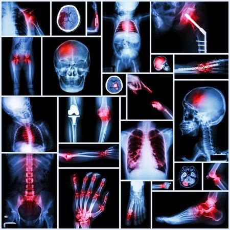 luxacion: Colecci�n de rayos X de varias partes del ser humano, el funcionamiento Ortop�dica y m�ltiples enfermedades (luxaci�n de hombro, Stroke, Fractura, Gout, reumatoide Foto de archivo