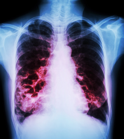 chronic: Bronchiectasis  X-ray chest show : multiple lung bleb and cyst due to chronic infection