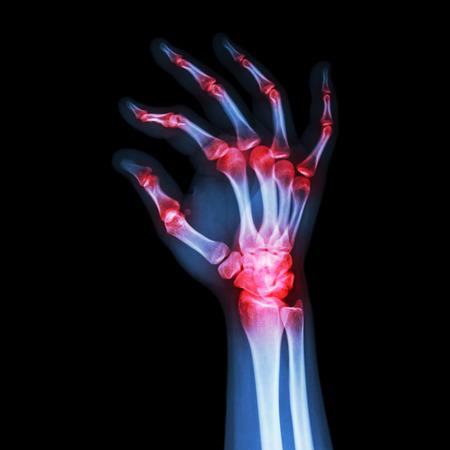 rheumatoid: Rheumatoid Arthritis , Gouty Arthritis  (X-ray adult s hand with multiple arthritis)