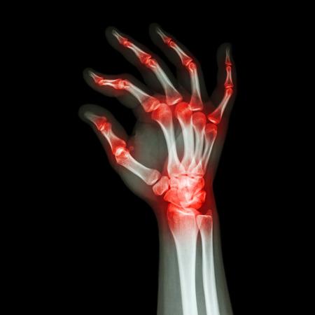 Rheumatoid Arthritis , Gouty Arthritis  (X-ray adult s hand with multiple arthritis)