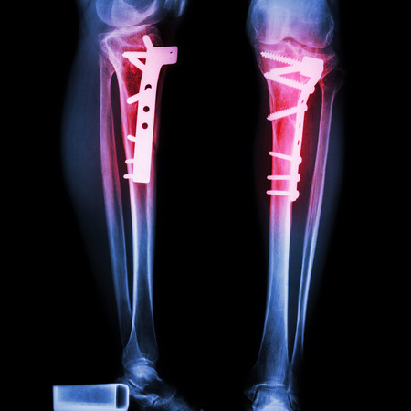 adult bones: fracture tibia(leg bone). It was operated and internal fixed by plate&screw
