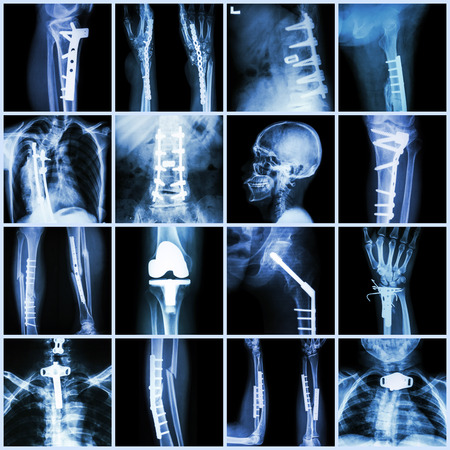Collection X-ray orthopedic surgery (Multiple part of human, operate and internal fixation by plate&screw)