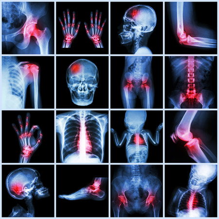 Collection X-ray multiple part of human and Arthritis,multiple disease (Gout , Rheumatoid,congenital heart disease,stroke) photo