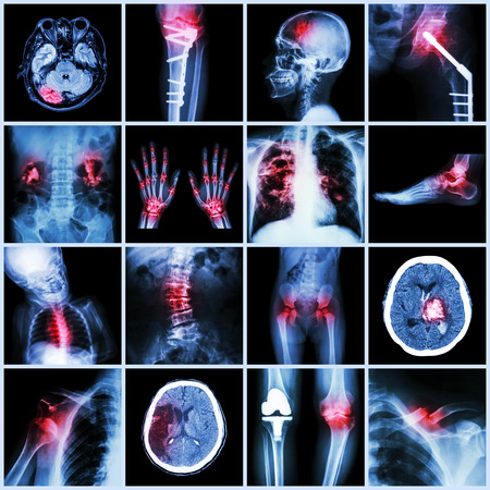 Set of X-ray multiple part of human,Multiple disease,orthopedic,surgery (Stroke,Bone fracture,Orthopedic operation,Kidney stone,Arthritis,Gout,Pulmonary tuberculosis,Heart disease,Scoliosis,etc) Stock Photo