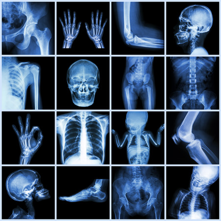 x ray skeleton: Collection multiple part of human