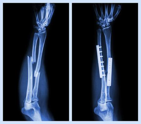 両方の前腕の骨を骨折します。作動したし、内部固定プレートとネジと (左の画像: 操作の前に右の画像: 操作の後)
