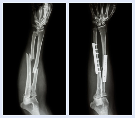 Fracture both bone of forearm. It was operated and internal fixed with plate and screw (Left image : before operation , Right image : after operation) Фото со стока