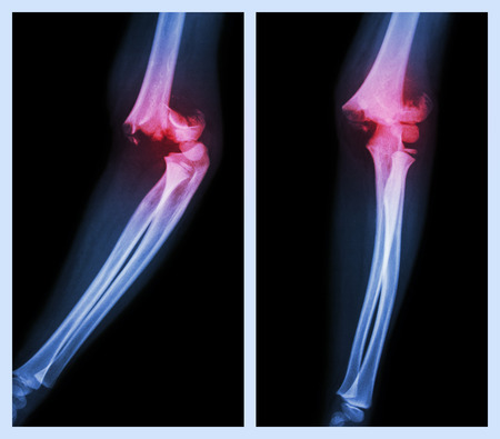 Fracture elbow (Left image : side position , Right image : front position) photo