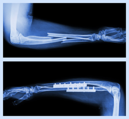 forearm: Upper image : Fracture ulnar and radius (Forearm bone) , Lower image : It was operated and internal fixed with plate and screw Stock Photo