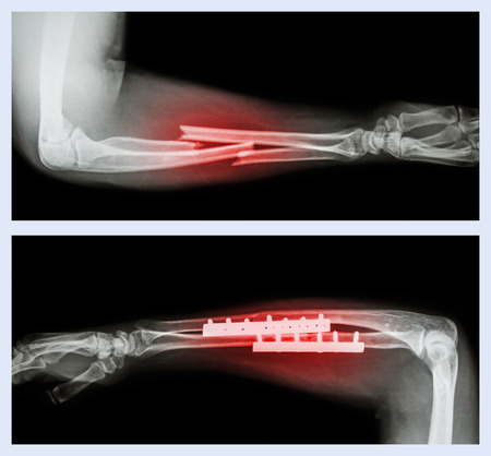 Upper image : Fracture ulnar and radius (Forearm bone) , Lower image : It was operated and internal fixed with plate and screw photo