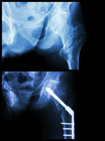acetabulum: Intertrochanteric fracture left femur (fracture thigh s bone). It was operated and inserted intramedullary nail.