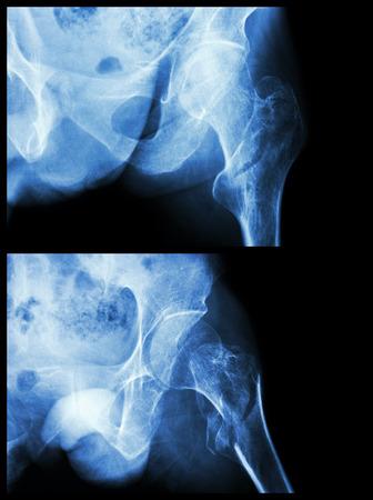 osteoporosis: Fractura de la cabeza del fémur (hueso del muslo) (fractura intertrocantérea) (2 posiciones)