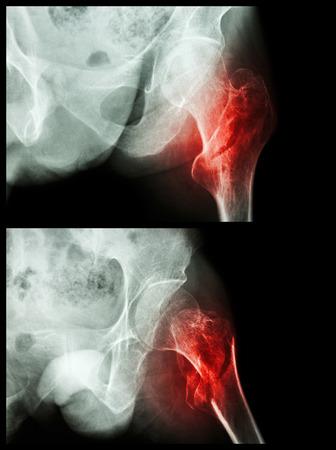 Fracture head of femur(Thigh bone) (intertrochanteric fracture)  (2 position)
