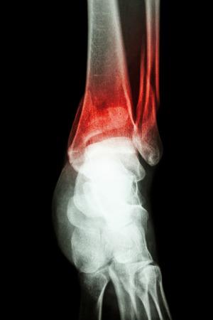 distal: pellicola radiografica spettacolo caviglia frattura della tibia e perone distale (osso della gamba) Archivio Fotografico