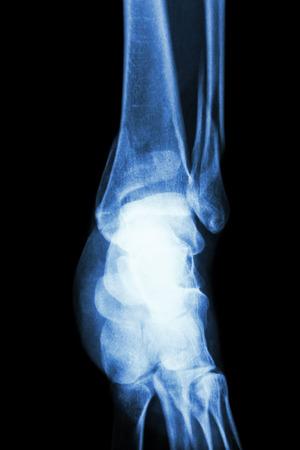distal: film x-ray ankle show fracture distal tibia and fibula (leg bone) Stock Photo