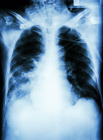 Pneumonia with respiratory. failure  film chest x-ray of patient with endotracheal tube,catheter. he was treated in ICU. photo