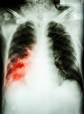 Pneumonia with respiratory.  photo