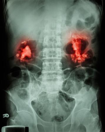 renal stone: Bilateral renal calculi(staghorn)