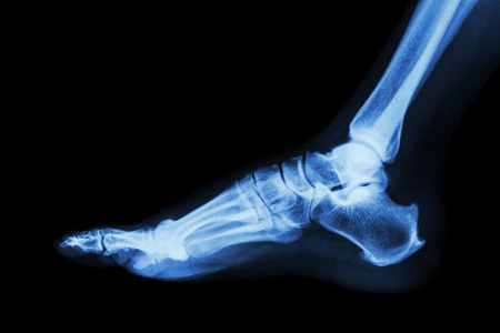 X-ray normal foot lateral photo
