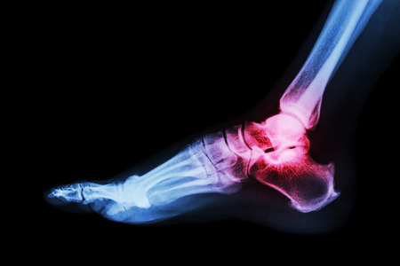 Arthritis at ankle joint (Gout , Rheumatoid arthritis) Stock Photo
